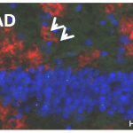Immunolabeling for pyroglutamate-amyloid (red) identifies neuritic plaques in the hippocampal formation. Green puncta represent hyperphophorylated tau aggregates that are often associated with the plaques. Note that the plaque and tau structure is rather similar in human sample (Braak V/VI stage) and in samples of 9 months old 5xFAD and APPSL mice. Blue color represents cell nuclei.