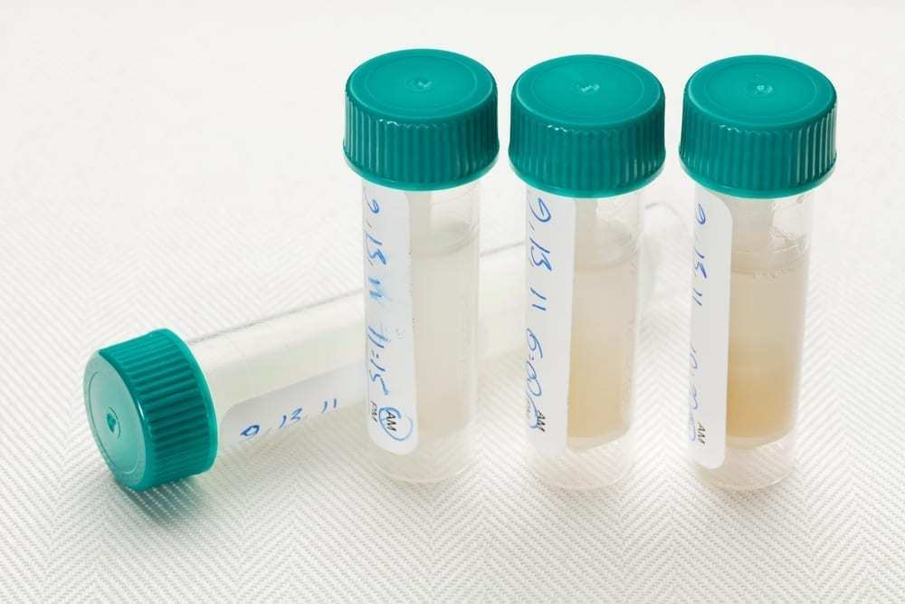 Saliva samples for a laboratory test